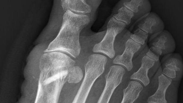 Röntgenbild eines Knochentransplantats
