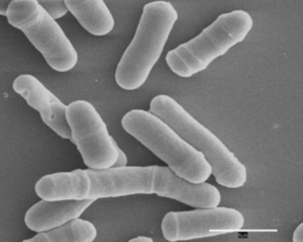 Spalthefe unter dem Mikroskop