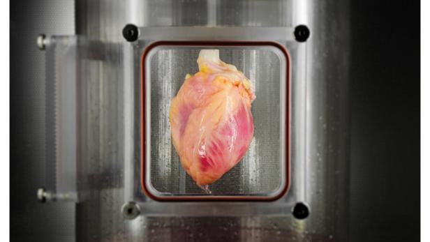 Forscher züchten menschliches Herzgewebe aus Hautzellen   futurezone.at
