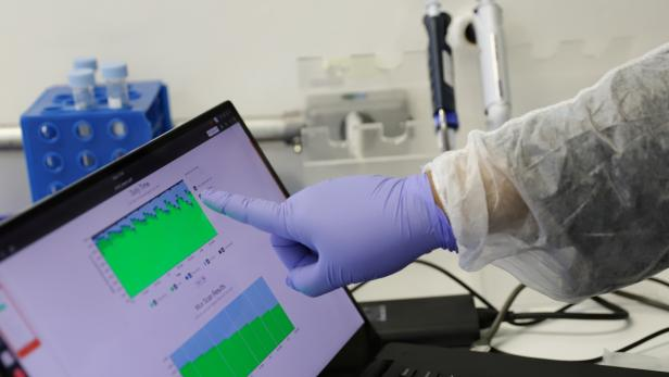 A scientist points to a computer screen showing a graphic of the coronavirus DNA sequencing at the Tropical Medicine Institute of the Sao Paulo University Medical School in Sao Paulo