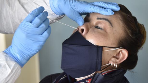 BOLIVIA-HEALTH-VIRUS-TEST