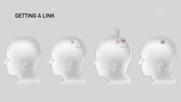 US-INTERNET-MUSK-COMPUTERS-HEALTH-SCIENCE