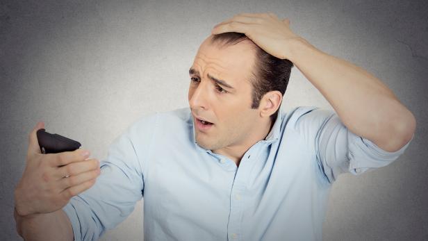 shocked man feeling head, surprised he is losing hair