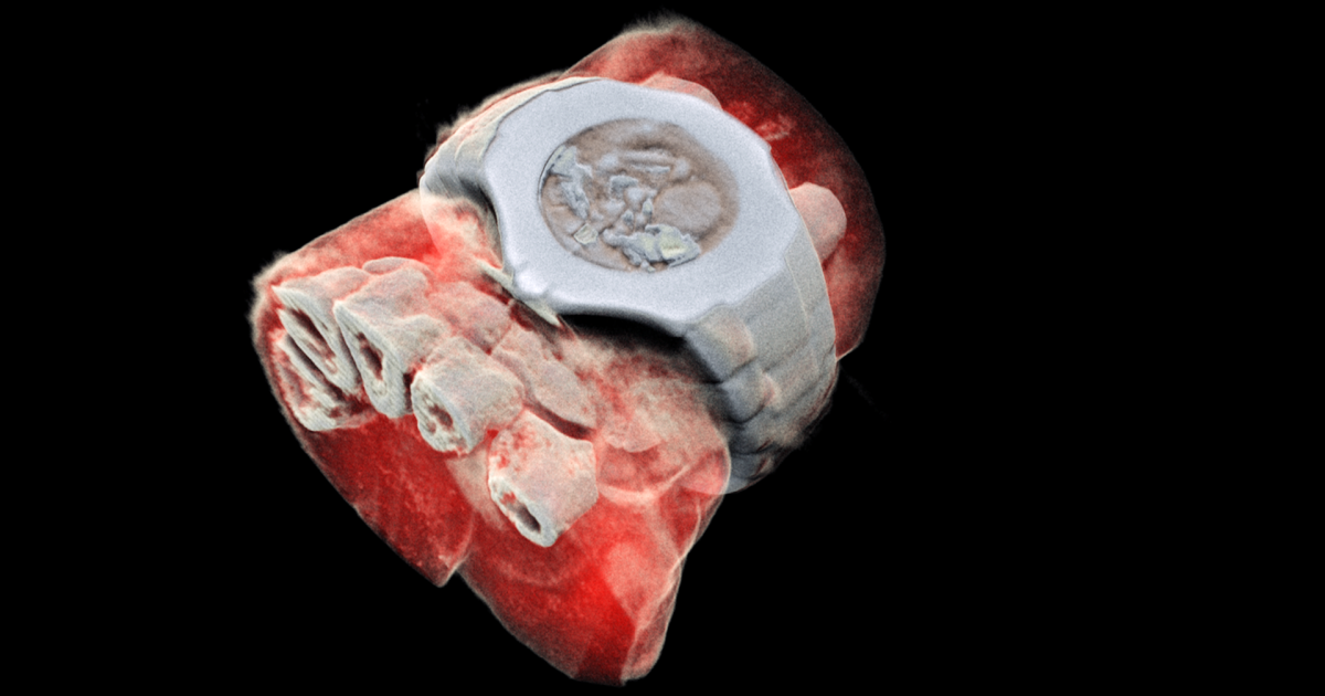 Farbiges 3D-Röntgen wird Realität