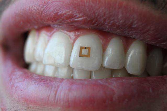 Sensor auf Zahn erkennt, was man isst und trinkt